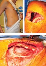 Case 46 Chest Wall Reconstruction