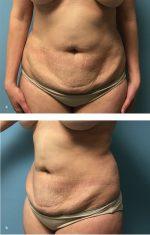 Case 48 Abdominoplasty