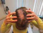 Focal hair loss