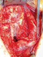 Reconstruction of Post-TURP Urethral Strictures