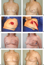 Oncoplastic Approach to Maximizing the Lumpectomy-Level II