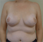 Guidelines and Patient Selection Criteria for Nipple and Skin-Sparing Mastectomy