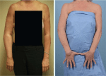 Basic Science and Management of Postsurgical Lymphedema and Vascularized Lymph Node Transplant