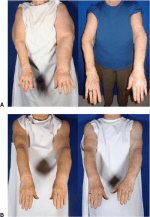 Liposuction as a Viable Treatment for End-Stage Upper Extremity Lymphedema