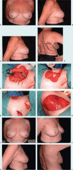 Local Flaps for Partial Mastectomy Defects