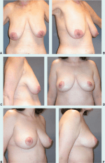 Breast Reduction and Mastopexy After Massive Weight Loss