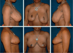 Management of Complications in Breast Reduction: The Displaced NAC