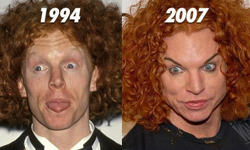 Carrot Top Plastic Surgery Before & After