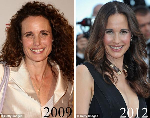 Andie MacDowell Plastic Surgery Before & After