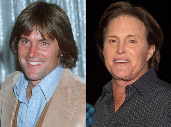 Bruce Jenner Bad Plastic Surgery