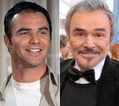 Burt Reynolds Plastic Surgery