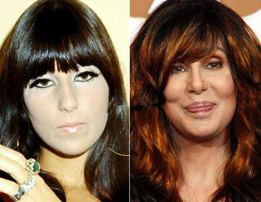 Cher Plastic Surgery Before & After Photo
