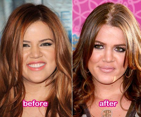 Khloe Kardashian Nose Job