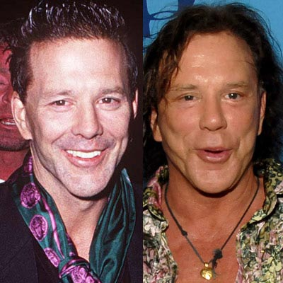 Mickey Rourke Plastic Surgery Disaster