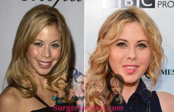 Tara Lipinski Plastic Surgery Before & After