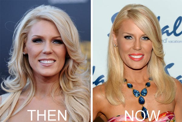 Gretchen Rossi Plastic Surgery Before & After
