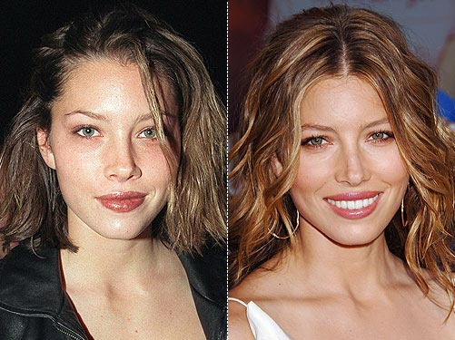 Jessica Biel Plastic Surgery Before & After