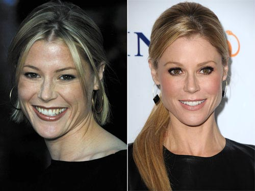 Julie Bowen Plastic Surgery Before & After