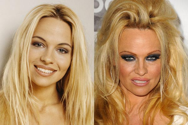 Pamela Anderson Plastic Surgery Before & After