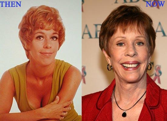 Carol Burnett Plastic Surgery