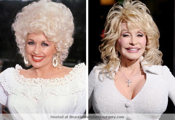 Dolly Parton Plastic Surgery Before & After