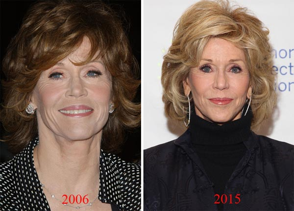 Jane Fonda Surgery Before & After