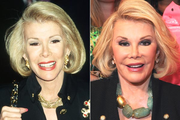 Joan Rivers Plastic Surgery Pictures