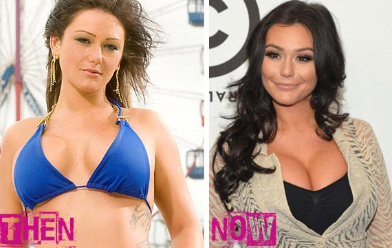 Jwoww Plastic Surgery Before & After