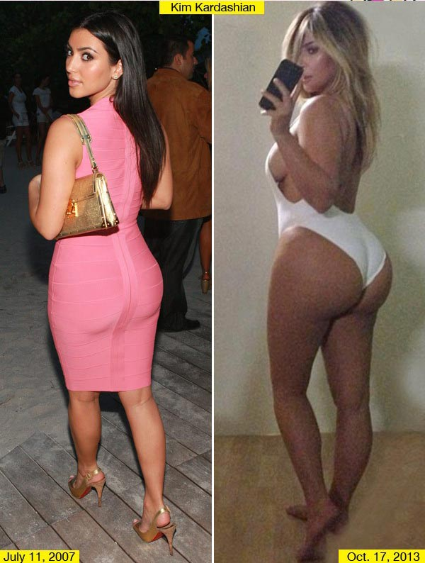 Kim Kardashian Butt Implants Before & After