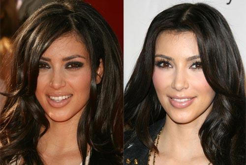 Kim Kardashian Nose Job
