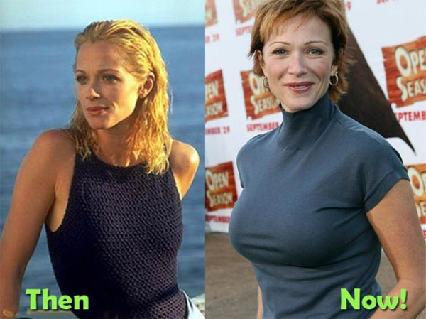Lauren Holly Boob Job (Breast Implants)