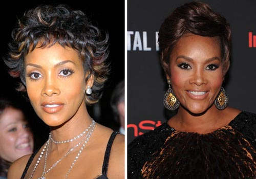 Vivica Fox Plastic Surgery Before & After