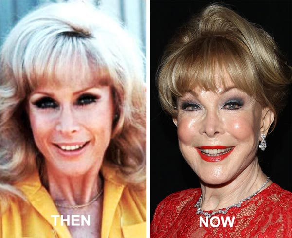 Barbara Eden Plastic Surgery Before & After