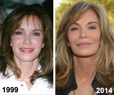 Jaclyn Smith Plastic Surgery
