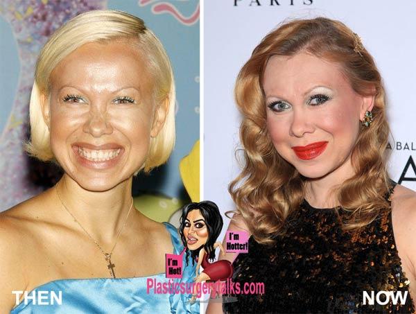 Oksana Baiul Plastic Surgery