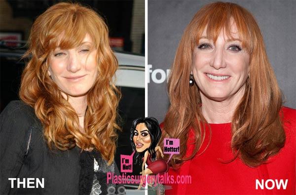 Patti Scialfa Plastic Surgery