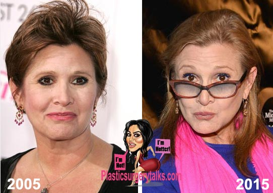 Carrie Fisher Plastic Surgery