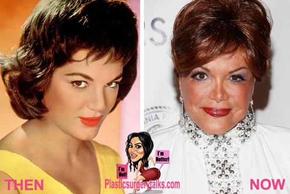 Connie Francis Plastic Surgery