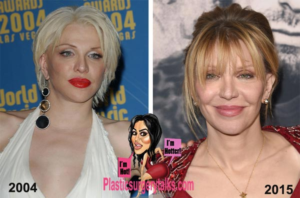 Courtney Love Plastic Surgery Before & After