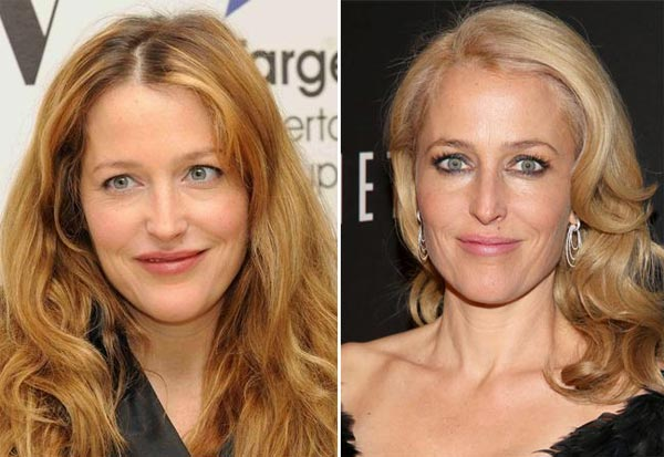 Gillian Anderson Plastic Surgery Before & After