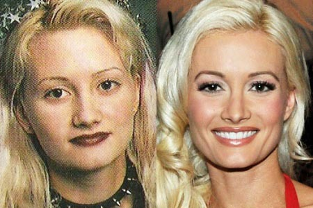 Holly Madison Plastic Surgery Before & After