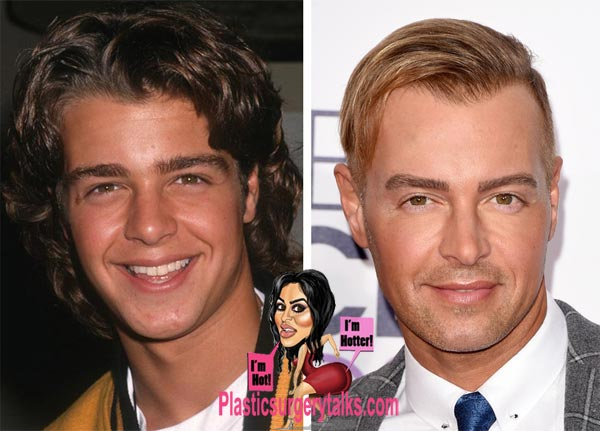 joey lawrence plastic surgery hair transplant before