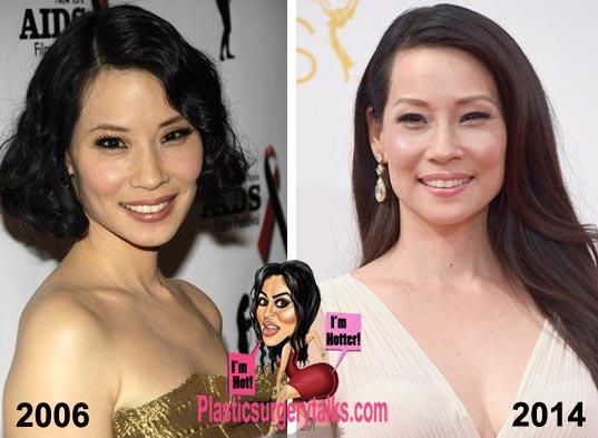 Lucy Liu Plastic Surgery