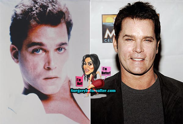 Ray Liotta Plastic Surgery Before & After