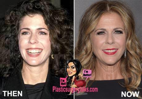 Rita Wilson Plastic Surgery