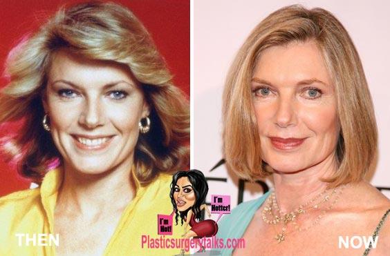 Susan Sullivan Plastic Surgery Before & After