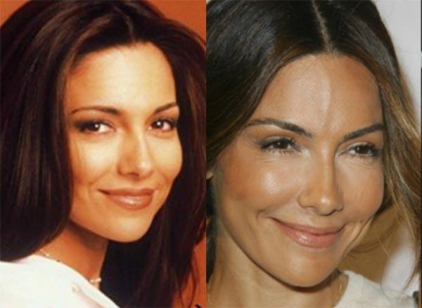 Vanessa Marcil Plastic Surgery Photos