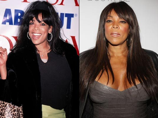 Wendy Williams Plastic Surgery Before & After