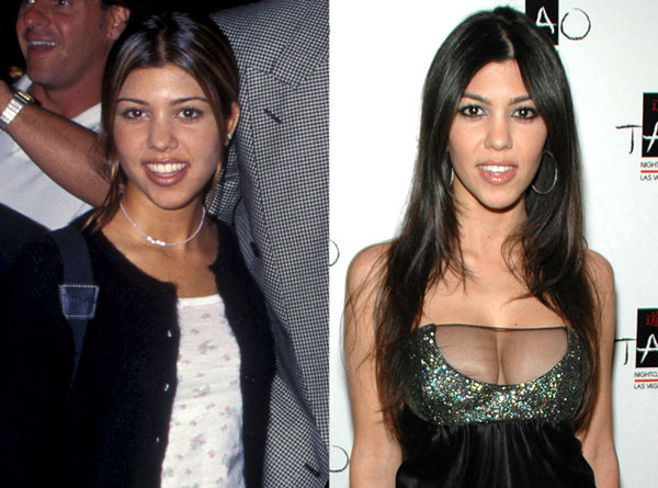 Kourtney Kardashian Breast Implants