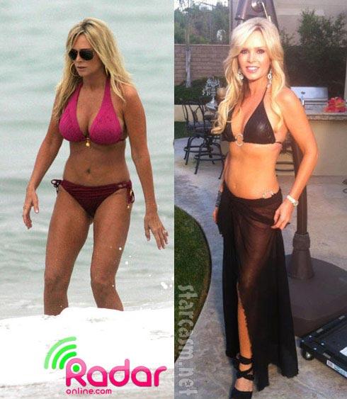 Tamra Barney Breast Reduction